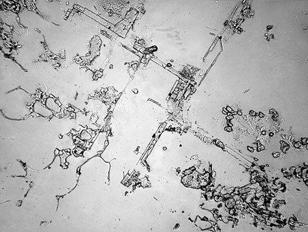 Bajo el microscopio, las lágrimas por llorar de alegría o por dolor son diferentes
