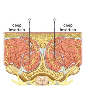 Los puntos Huatuojiaji y la degeneración espinal espondilosis